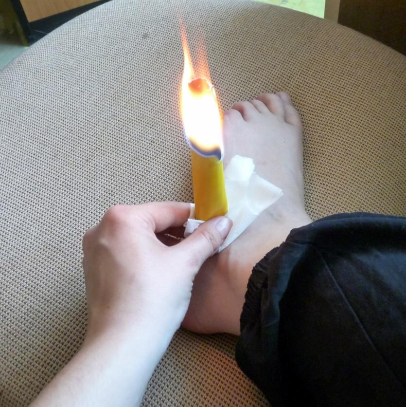 Svíčkování